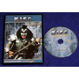 Kiss - Over The Top - Dvd - Documentary